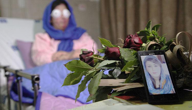 قربانی اسیدپاشی اصفهان